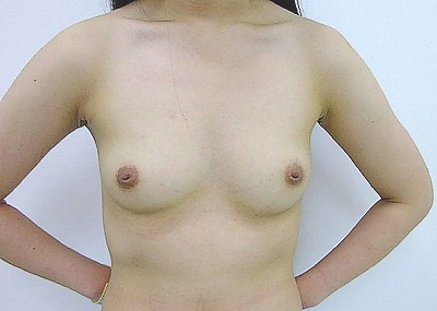 貧乳で陥没乳首という残念過ぎるお○ぱいのエ□画像